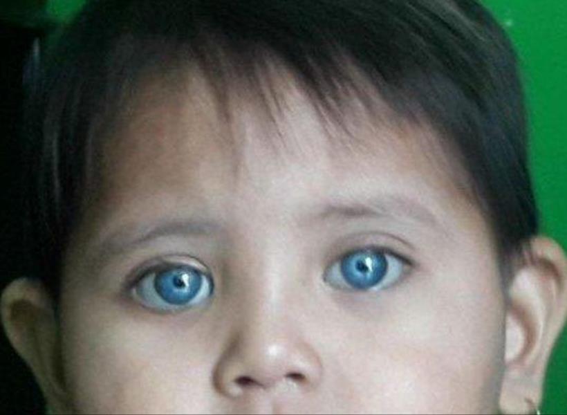 Balita Keturunan Betawi Miliki Mata Biru